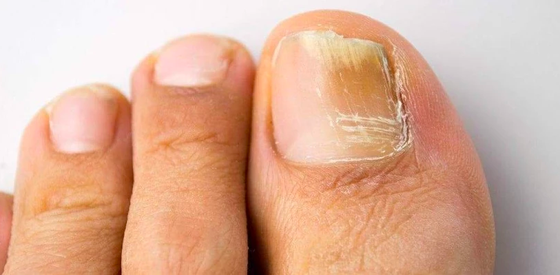 Nail Fungus Treatment – Natural Home Remedies Can Be Your Best